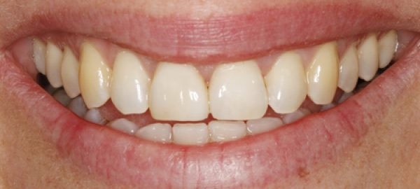 Comp-Veneer's-after-and-single-tooth-bleaching