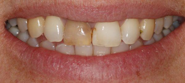 Comp-Veneer's-before-and-single-tooth-bleaching