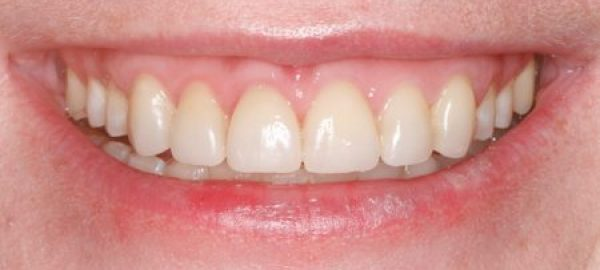 Orthodontics, gum reduction, bleaching and porcelain veneers made a drastic improvement to her smile.