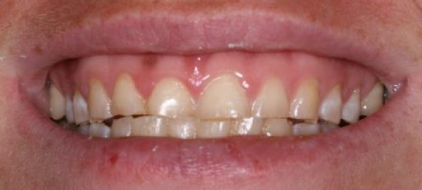 A fairly common bite discrepancy was causing this patient to wear down her front teeth.